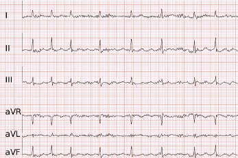 First testing of detection of Atrial Fibrillation